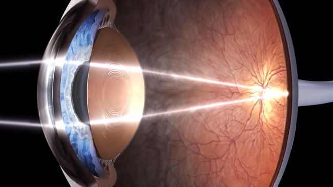 Light hitting the back of the retina.