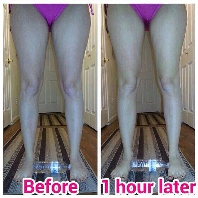 How to lose weight in your legs picture 1