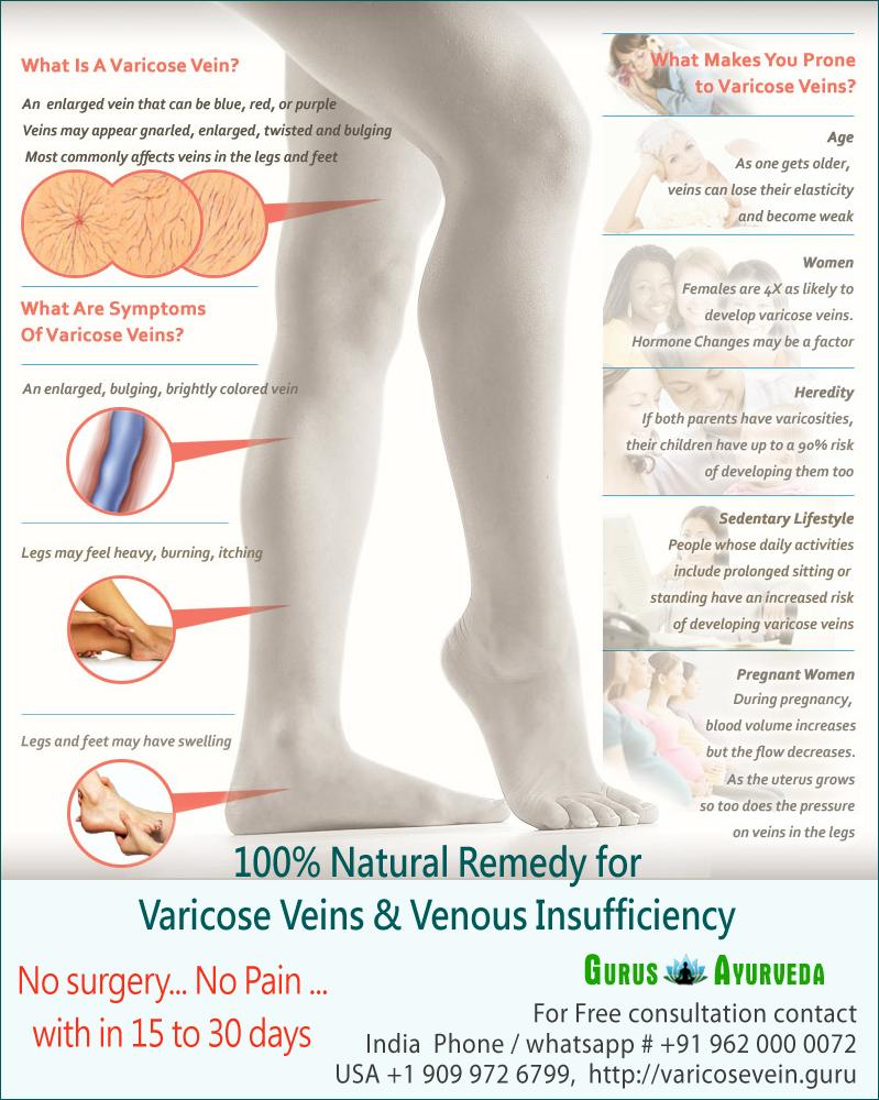 venicose varicose vene)