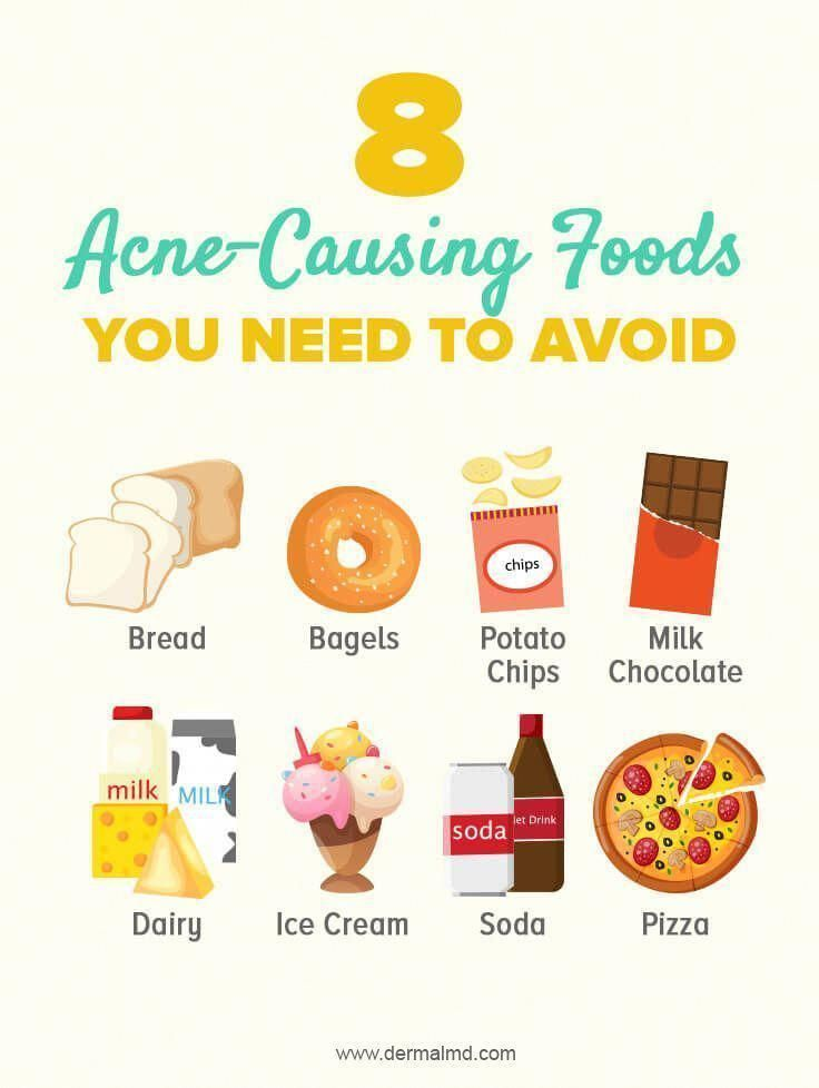 Foods which you should quit to avoid acne.   Oily, junk, fatty foods should be a...-#ACNE #Avoid #fatty #Foods #Junk #Oily #quit- Foods which you should quit to avoid acne.   Oily, junk, fatty foods should be a…  Crystal's Elite Skin Care crystalpedwards Home Acne Remedies Foods which you should quit to avoid acne.   Oily, junk, fatty foods should be always prevented not only for acne but for complete health too. So try to have fresh healthy foods not foods like soda, pizza, potato chips etc. A