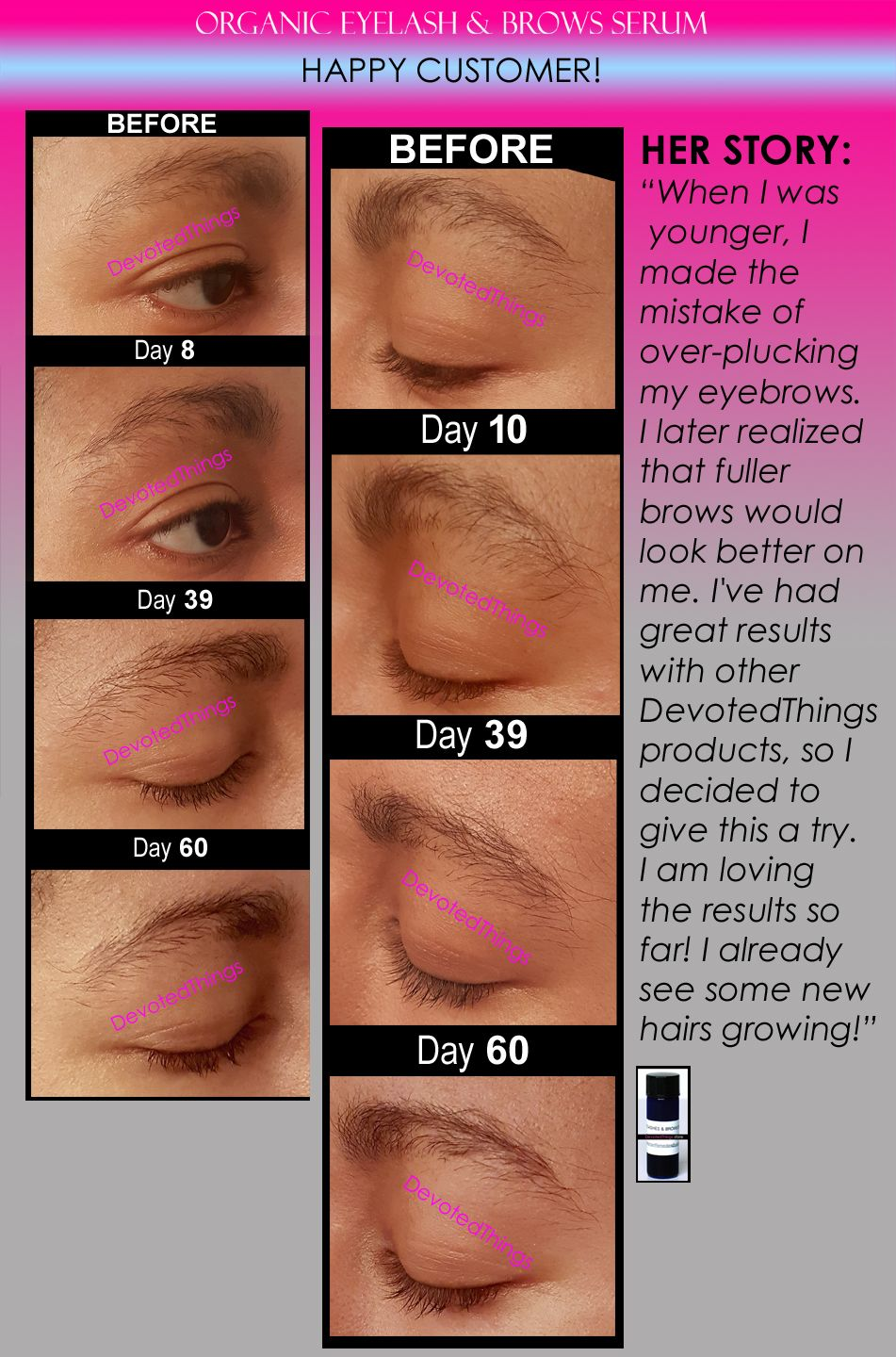 Before and After pictures for the Organic Eyelash & Brows ...