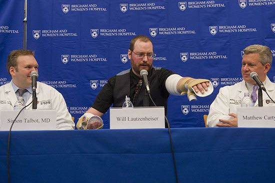 A former lecturer at the College of Communication undergoes 9-hour Double Arm Transplant Surgery that involved 48 people, including 13 surgeons. http://www.bu.edu/today/2014/rare-double-arm-transplant-for-former-com-lecturer
