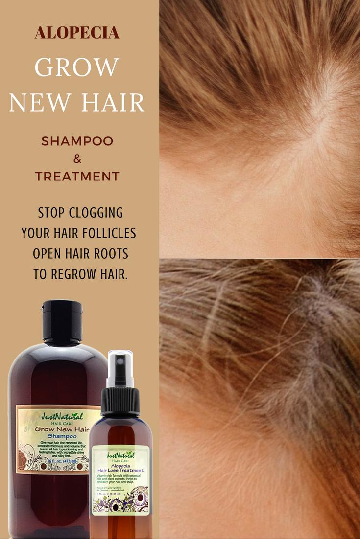 Grow New Hair Shampoo Hair Loss Cure Hair Shampoo Hair Loss Treatment