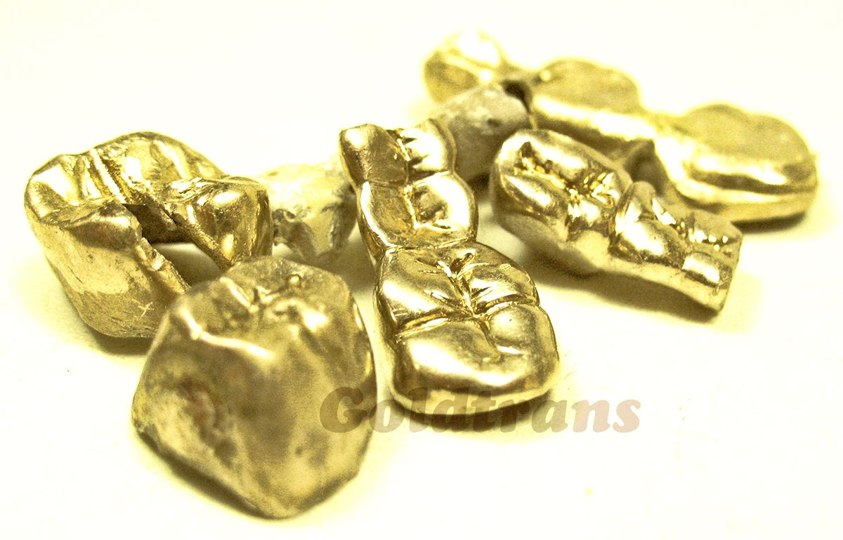 Zahngold Rechner Goldankauf Gold Zähne