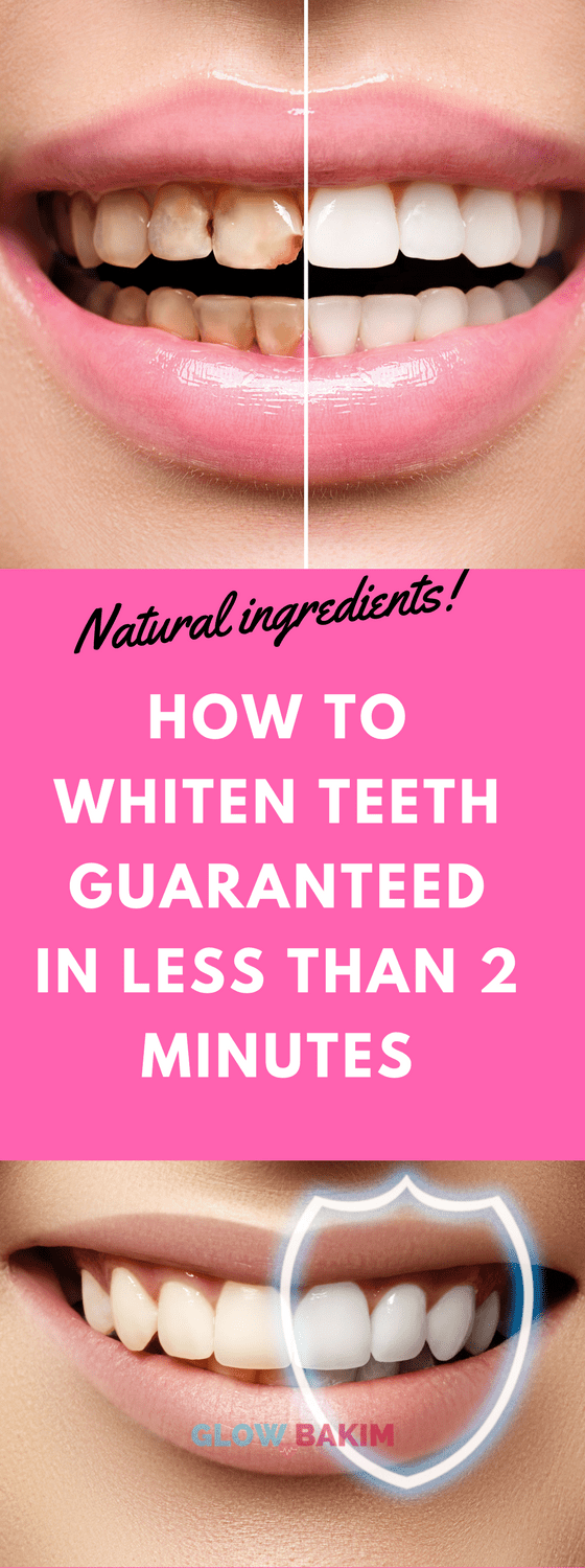How to Whiten Teeth Guaranteed in Less Than 2 Minutes - Glow Bakim #howtowhitenyourteeth