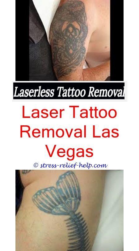 Salt and saline tattoo removal.Picosure laser tattoo ...