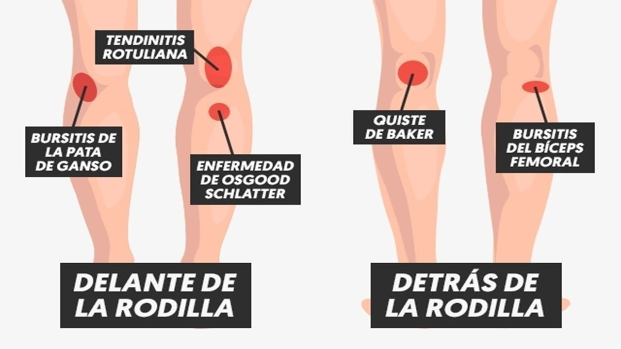Eliminar dolor en la parte baja de la espalda de una vez por todas