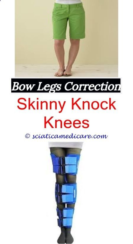 bow for legs surgery Adult