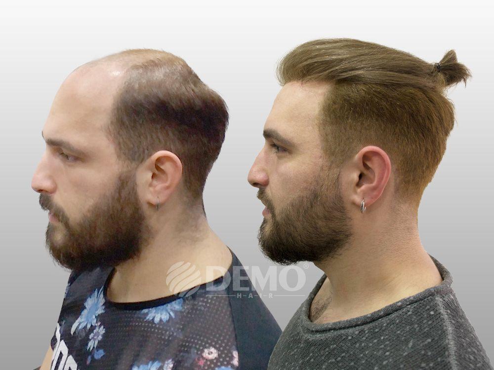 Demo Hair Uzun Suredir Sac Protezi Uzerinde Calismalar Yaparak