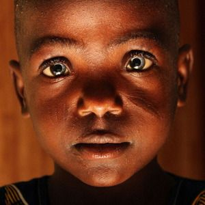 10 Genetic Mutations And Evolutionary Traits Found In Africa With