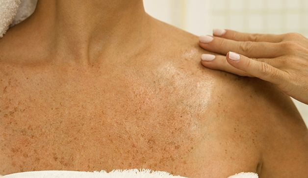 how to get rid of brown spots