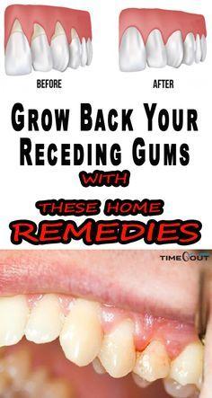 Cure gum disease naturally pdf download