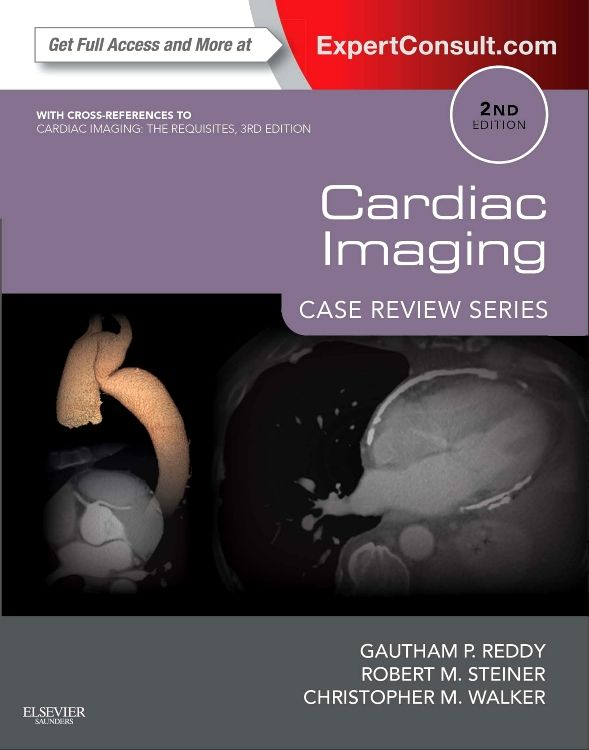 "Just released: Stay current with the aid of updated cases covering cardiac #radiology, CT, and CT #angiography in ""Cardiac Imaging, 2nd Edition!"""