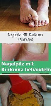 Treating Nail Fungus With Turmeric – # Treating #Turmeric # with #Nail Fungus – …