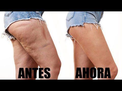 Como eliminar la piel flacida de las piernas
