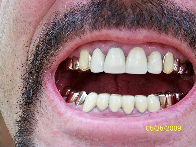 Gold Teeth and Crowns front view Tips for obtaining free ...