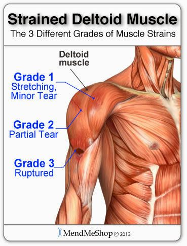 The Three Grades Of Deltoid Muscle Strains Shoulder Pain