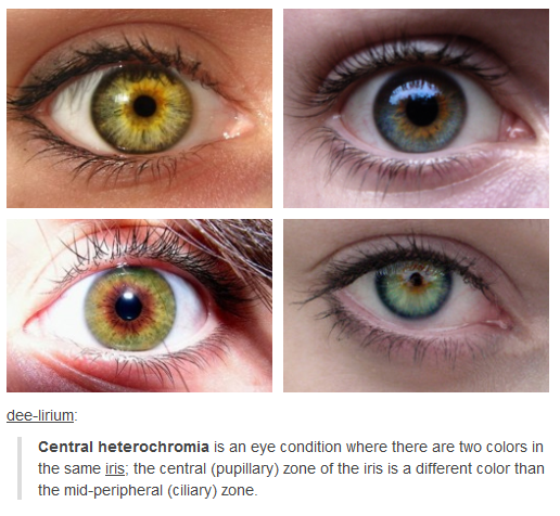 Central Heterochromia love this how I never figured this out about