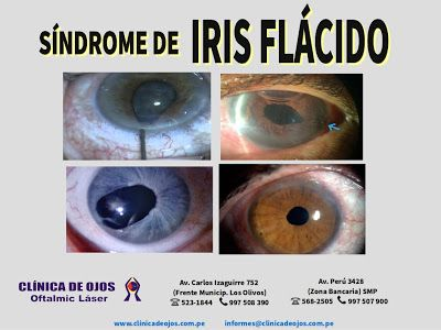 Clinica De Ojos Oftalmic Laser El Sindrome Del Iris Flacido Intraoperatorio Ifis