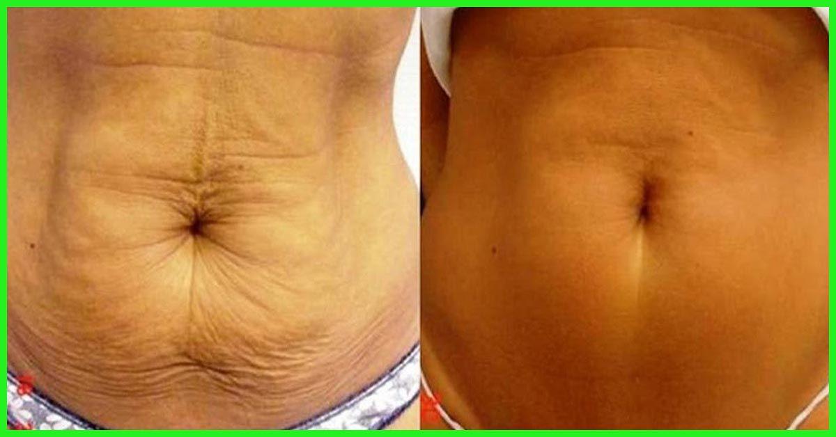 pierdere în greutate saggy belly ceaiuri de plante sănătoase pentru pierderea în greutate