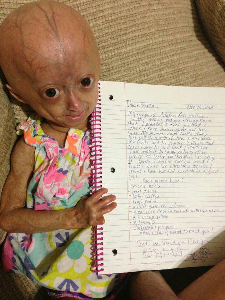 Adalia Rose Willliams!!!!!!!!! read the note it is sooo cute to precious!