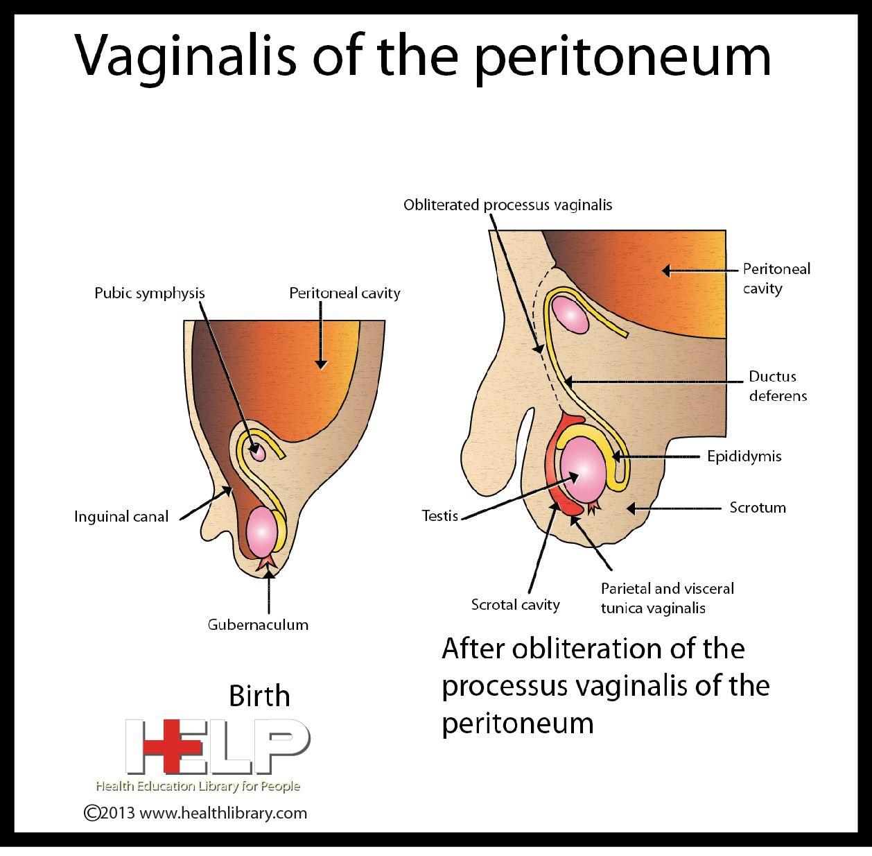 Vaginalis Of The Peritoneum