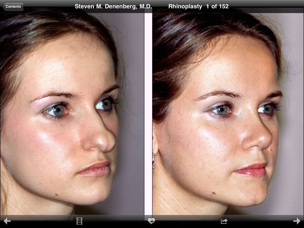 poor girl but dhe looks great now | plastic surgery | pinterest