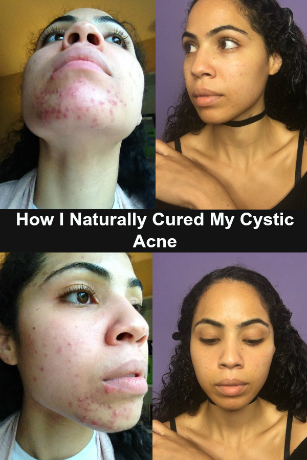 How I Cured My Hormonal Acne Naturally