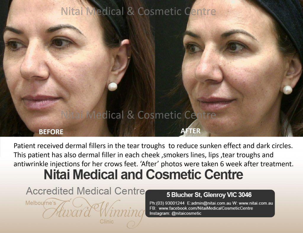 Dermal Fillers Treatment Before & After Images - Nitai Medical