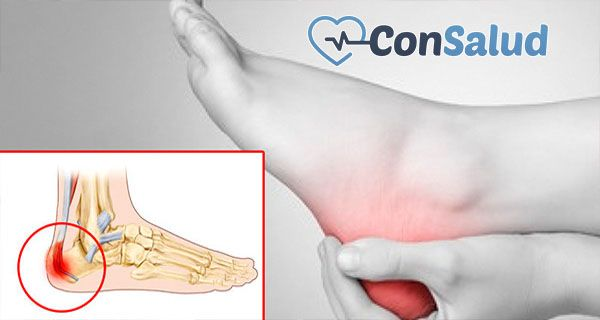 ¿la fibromialgia causa fascitis plantar reaction
