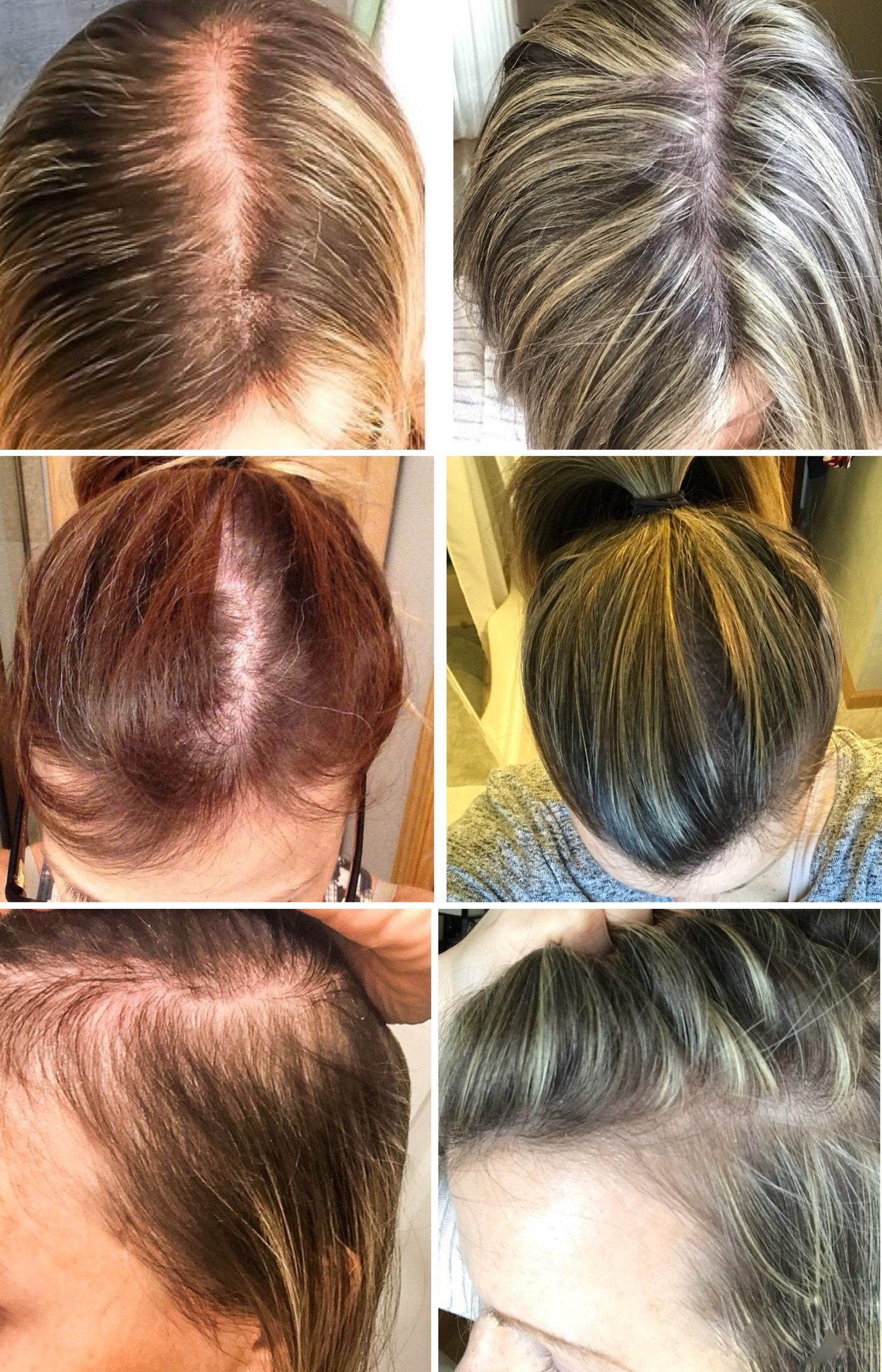 Women And Hair Loss Causes Solutions And Support First Thyme Mom Thick Hair Remedies Hair Loss Remedies Women Pcos Hair Loss