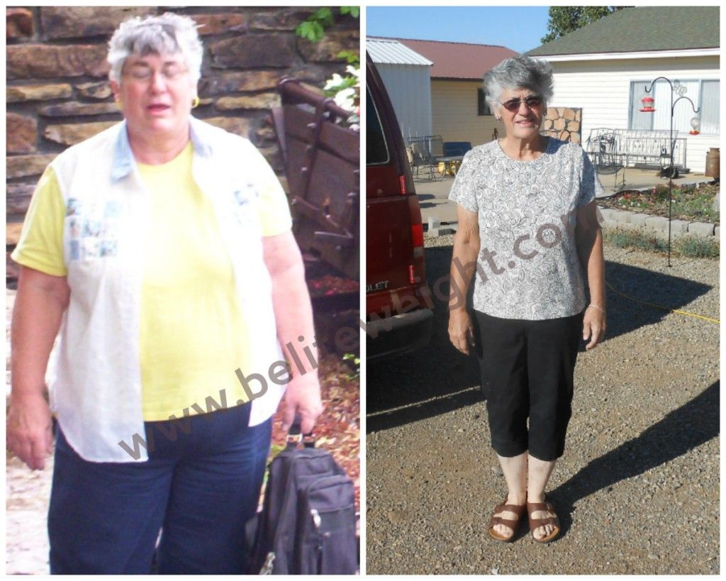 Carolyn S Medicare Paid Gastric Bypass Success Story