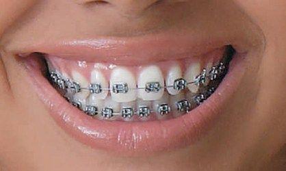 Saiba Como Limpar Corretamente O Seu Aparelho Dentario Saude Em