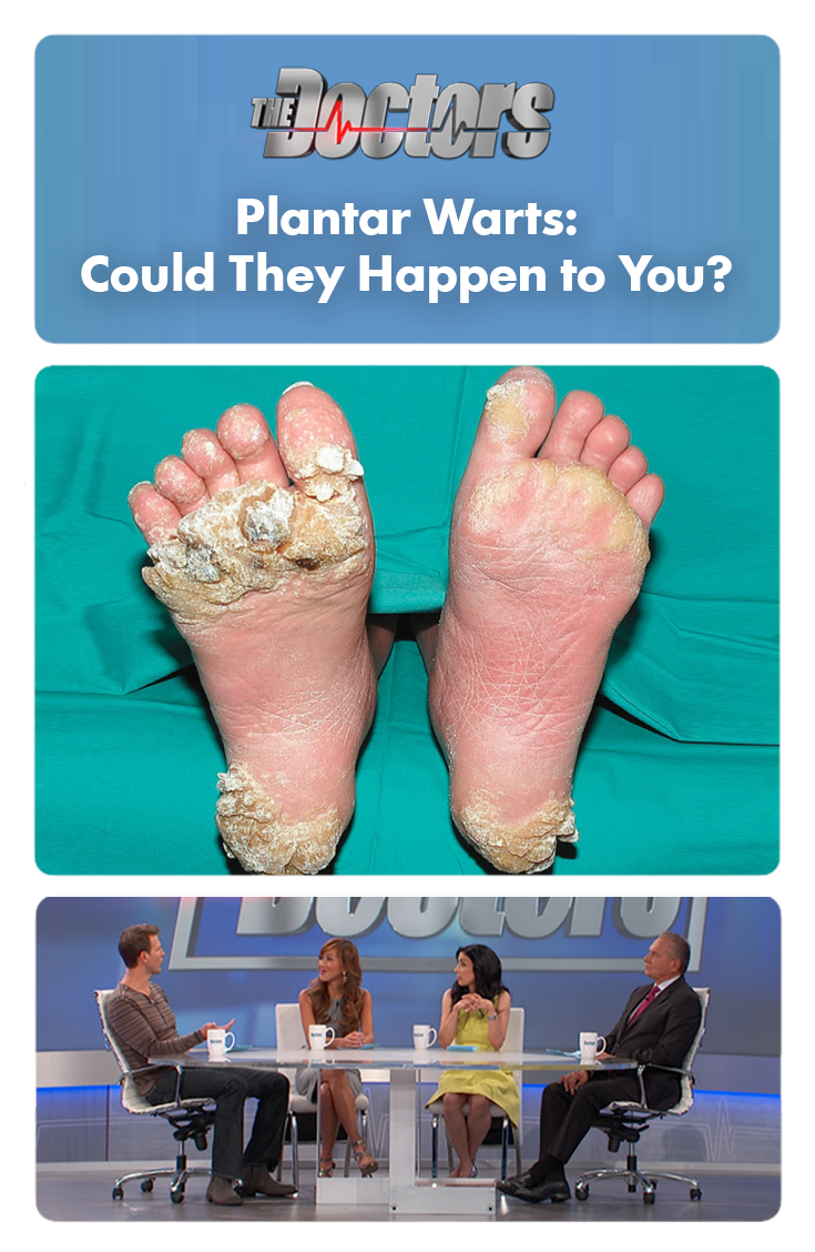 Plantar Warts How To Treat This Potentially Painful Condition Warts Wart Treatment Planters Wart