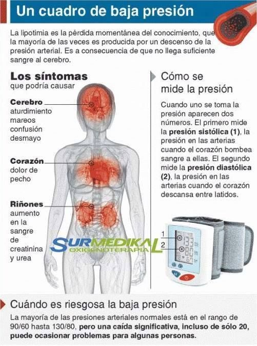 hipotensión sintomas y causas