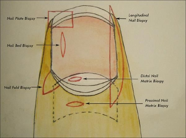 Knowing Fingernail Diagram For Women Healthngernails Pinterest