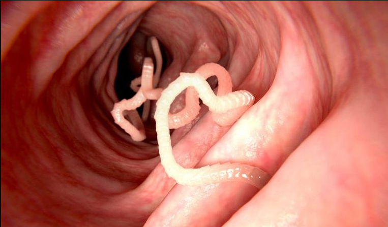 receptek a pinworm kezelésére