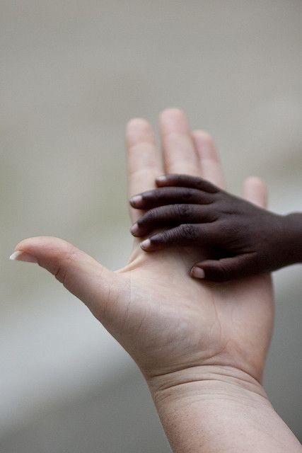 The color of our skin is irrelevant. Love one another.