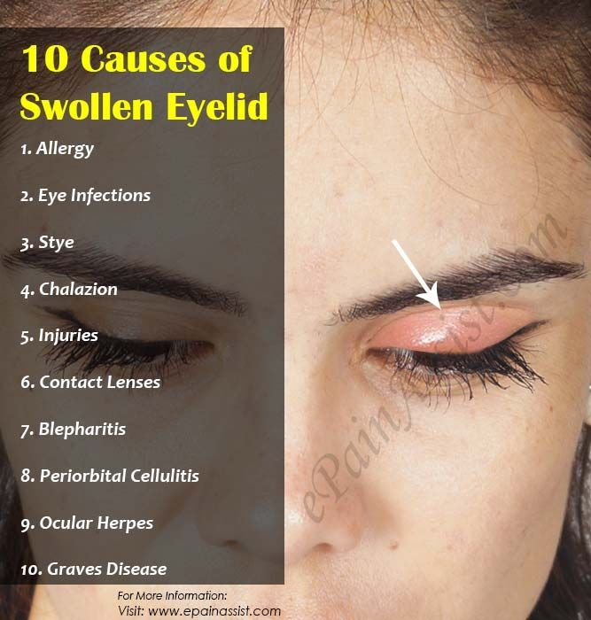Pin On Eye Remedies