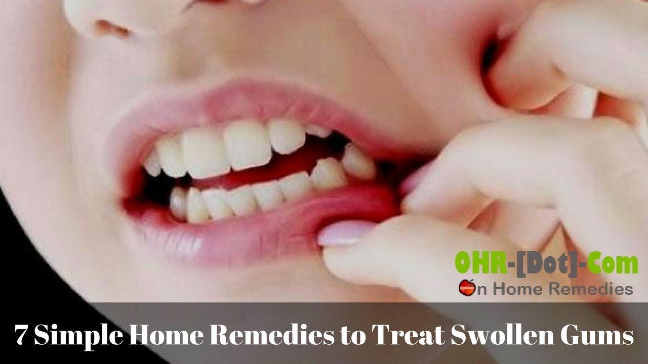 7 Simple Home Remedies to Treat Swollen Gums Swollen gum