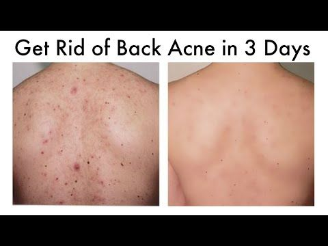 How To Get Rid Of Back Acne At Home In 3 Days Youtube In 2020 Chest Acne Back Acne Treatment Forehead Acne