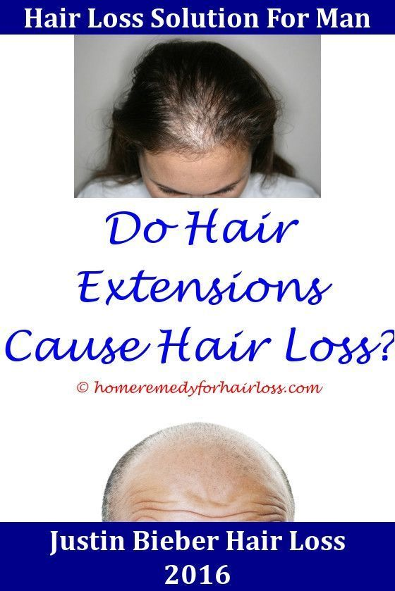 Hair Loss Does Bigen Hair Color Cause Hair Loss Best Organic Shampoo