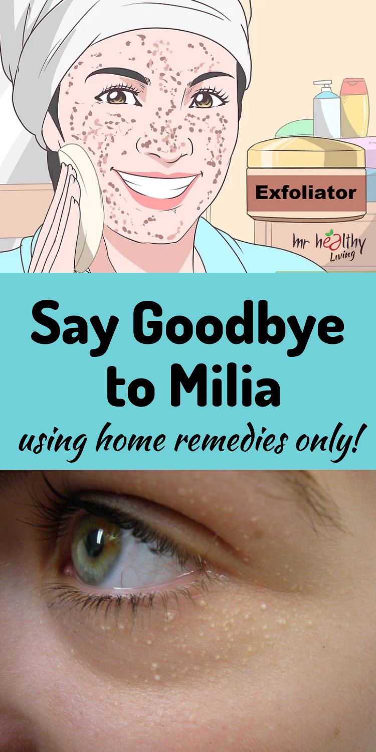 Say goodbye to Milia using home remedies only Diy