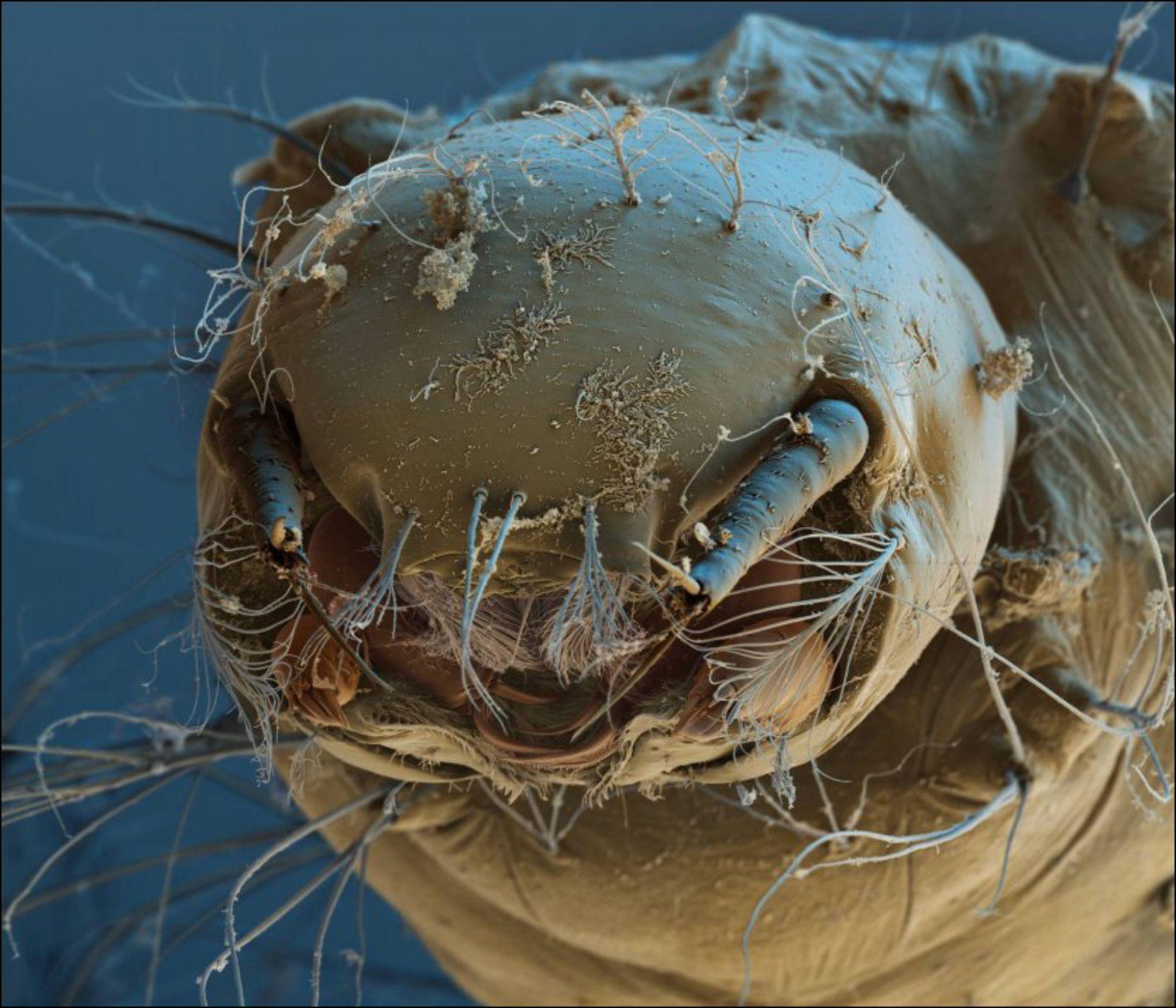 Микробы на фотографии