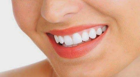 Tips Cepat Memutihkan Gigi Kuning Dengan Cara Alami Garam Lemon