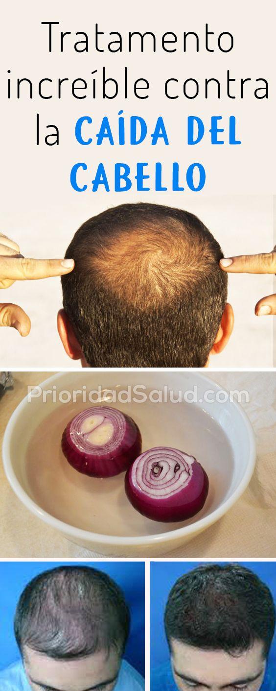 Tren Lejos Vista  Remedio natural para detener la caida del cabello, recuperar pelo, caida de  pelo, remed… | Caída del cabello, Remedios para la caída del cabello,  Pérdida de cabello