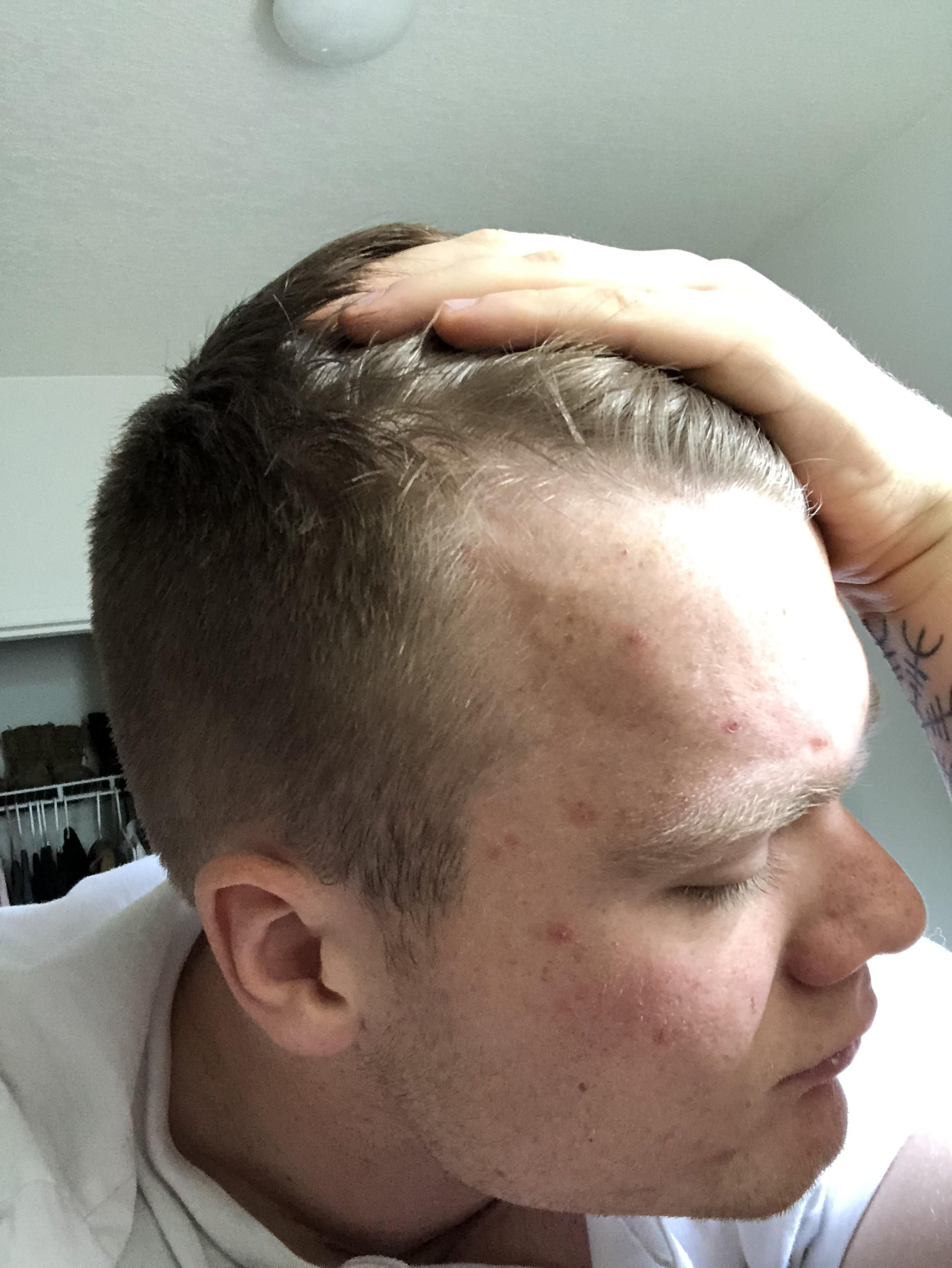 am i going bald? is it possible this is just my hairline? 20
