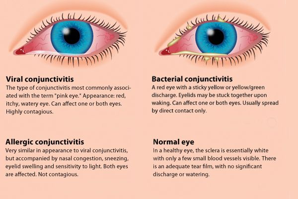 What Is Pink Eye What Are Pink Eye Symptoms What Is Pink Eye
