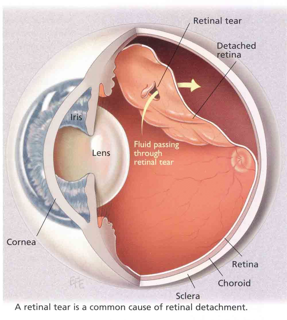 detached_retina_large.jpg (1000×1114) | Oftalmológica | Pinterest ...