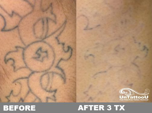 UnTattooU: Laser Tattoo Removal: Before & After 3 Treatments ...